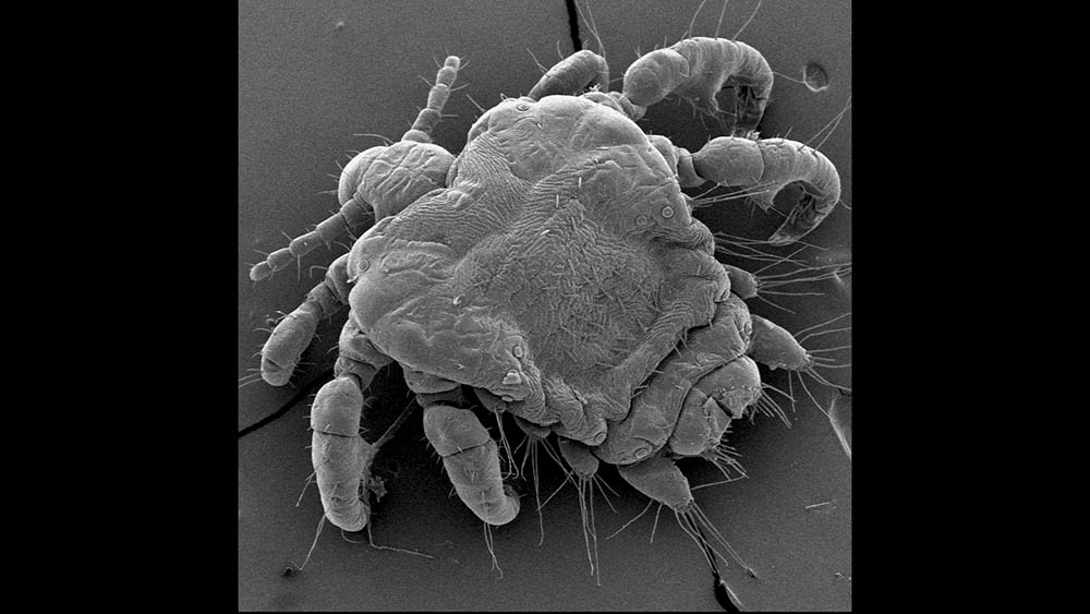 Imagem de microscópio do Pthirus pubis, carrapato causador do chato (pediculose pubiana).