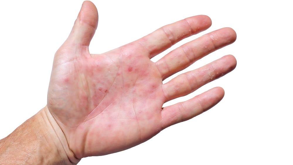 Mão com lesões na palma provocadas pelo eritema