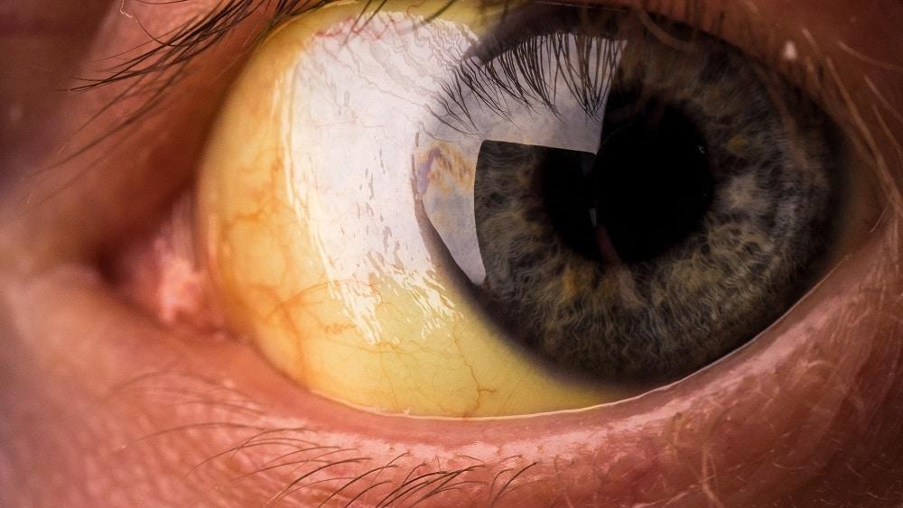 Foto de um olho amarelo, com sinais de icterícia, um dos sintomas da talassemia