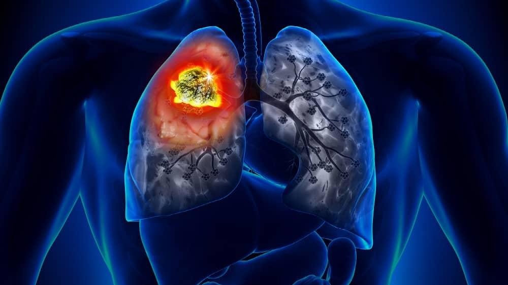 Ilustração de um tumor representando o câncer de pulmão