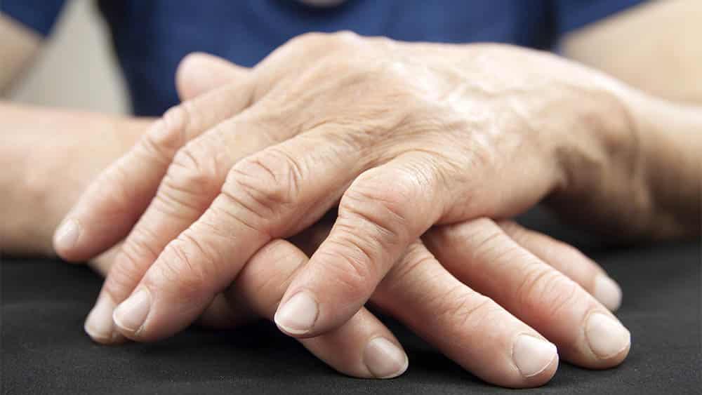 Mãos de mulher mais velha com deformidades de artrite reumatoide.