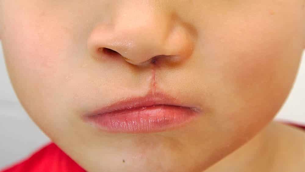 Close na região de boca de menino com cicatriz de cirurgia de lábio leporino e fenda palatina.