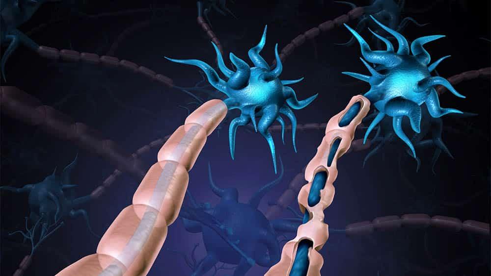 Ilustração de neurônios desmielinizados, dano característico da esclerose múltipla.