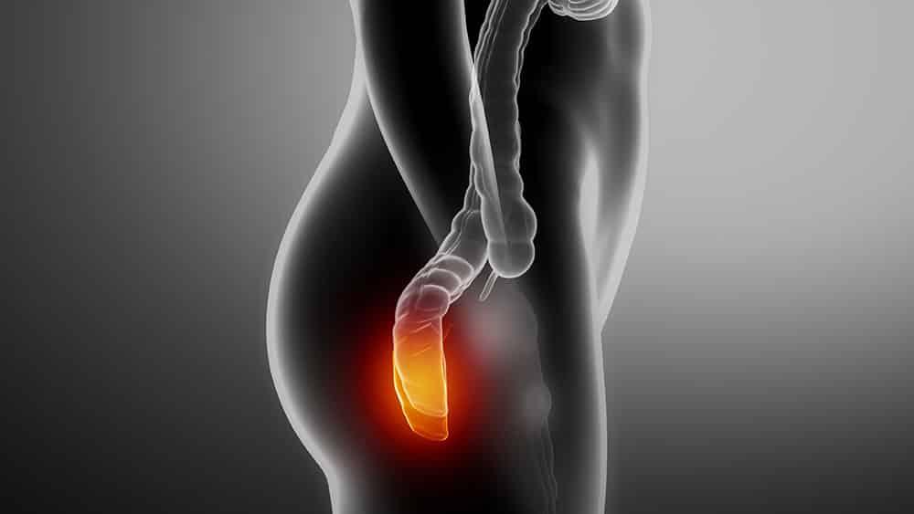 Ilustração digital de um corpo feminino de perfil, centrado na região do intestino com o reto em destaque.