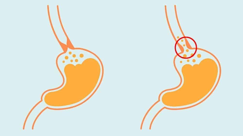 Ilustração com um estômago normal e outro com a passagem para o esôfago aberta, uma das causas do refluxo.