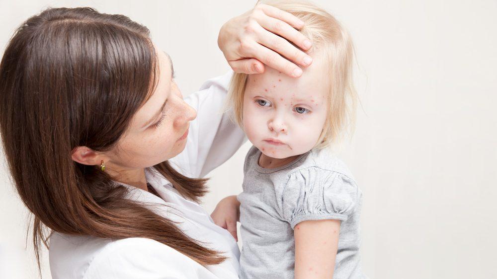 mãe segurando a filha com catapora no colo