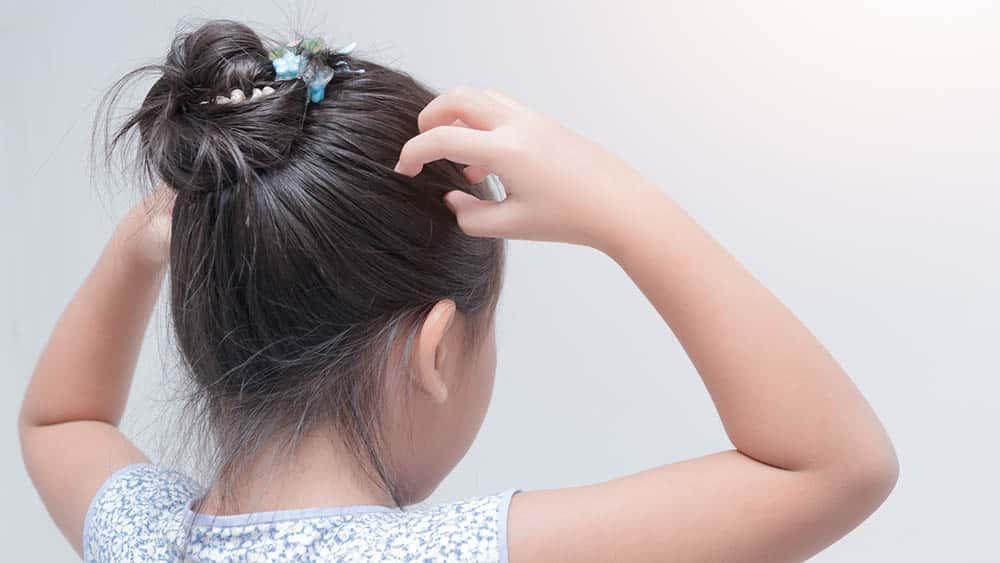 Menina de costas coçando a cabeça, principal sintoma do piolho.