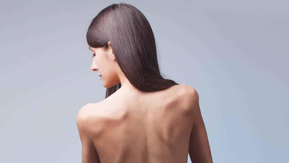 Mulher que sofre de anorexia de costas, olhando por cima do ombro.