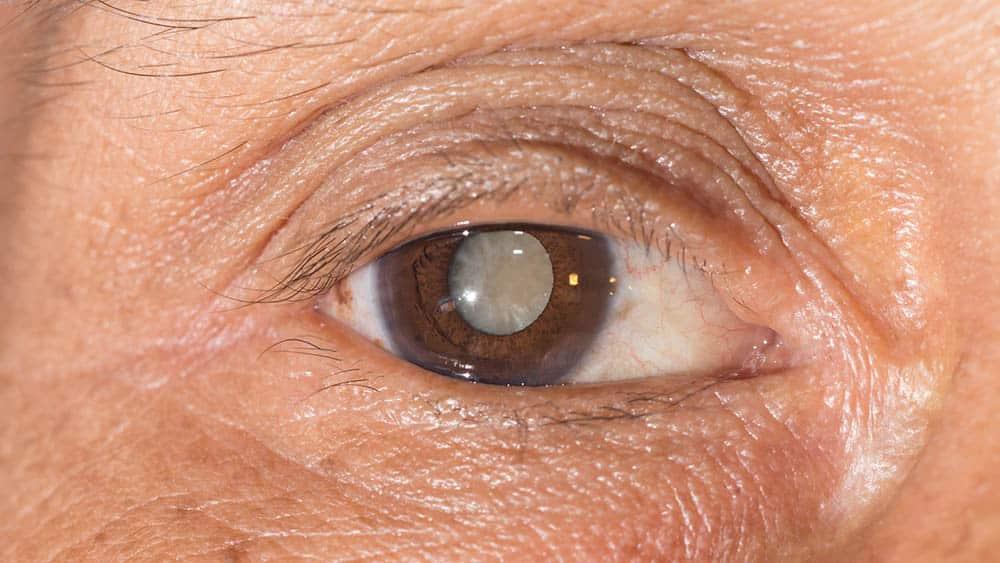 Close em olho de mulher com o cristalino opaco, principal sinal da catarata.