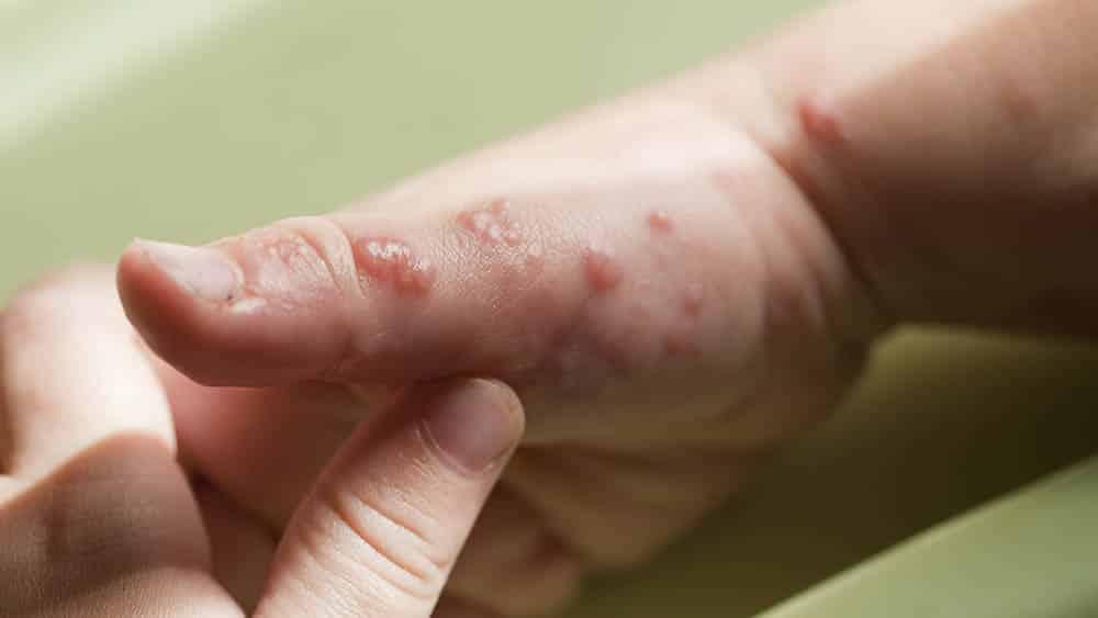 Vesículas na mão características do herpes-zóster.