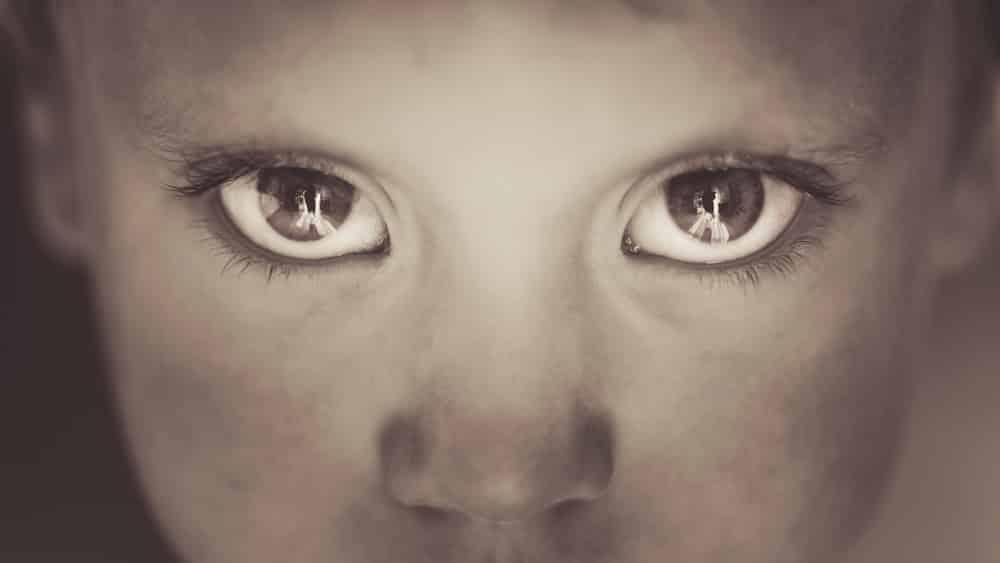 Retinoblastoma é um tumor maligno que se desenvolve na retina. O sintomaé a leucocoria, ou seja, um reflexo branco semelhante ao do olho do gato, quando um feixe de luz artificial ou de um flash incide através da pupila.