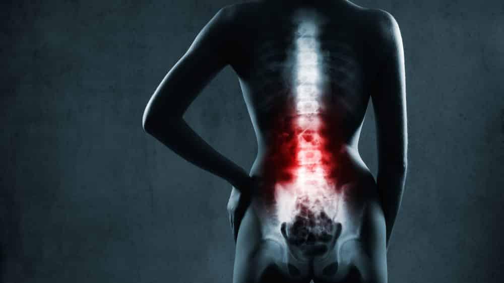 desenho de coluna vertebral em 3D. Traumas na coluna causam lesões graves.