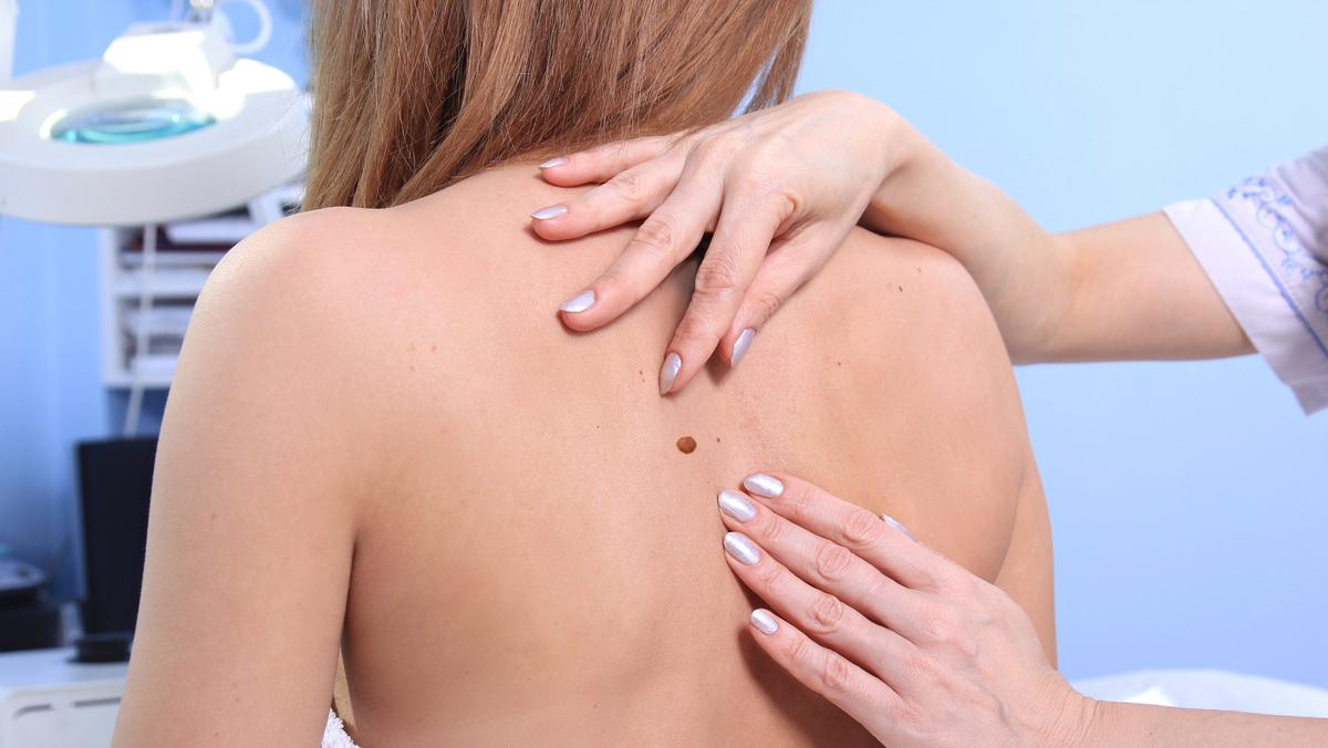 Hoje, é raro encontrar quem não conheça a relação entre exposição ao sol e câncer. Conheça os fatores de risco do câncer de pele e previna-se.