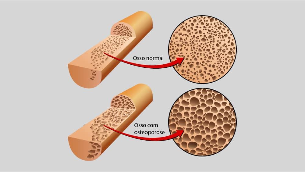 Ilustrações comparando osso normal e com osteoporose.