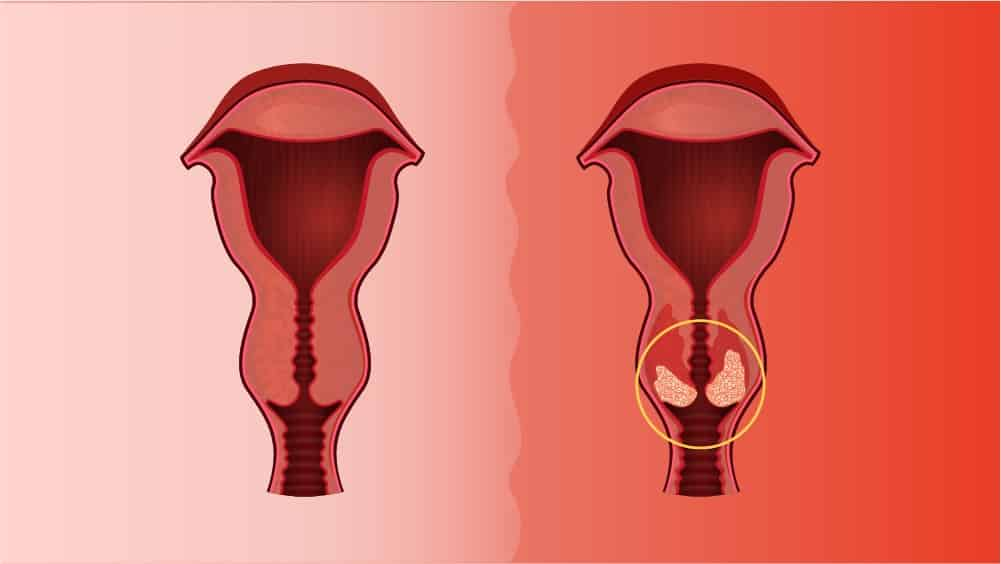 Ilustração com útero normal à esquerda e outro à direita com tumor.
