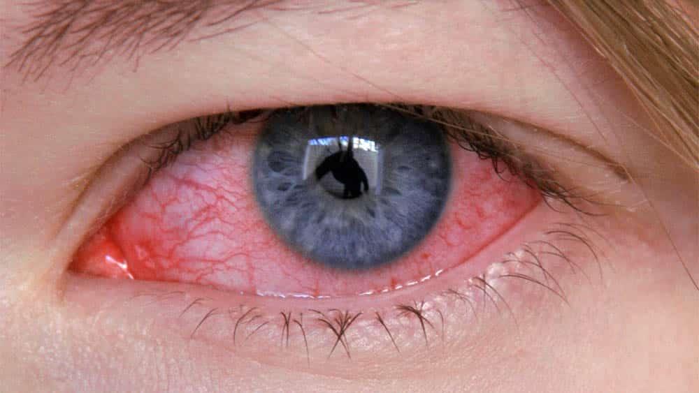 Imagem macro de um olho irritado de mulher.