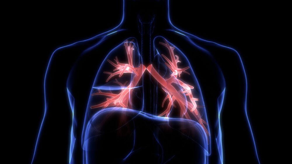 Doença pulmonar obstrutiva crônica (DPOC) é muito prevalente, mas diagnóstico tardio impede tratamento precoce.
