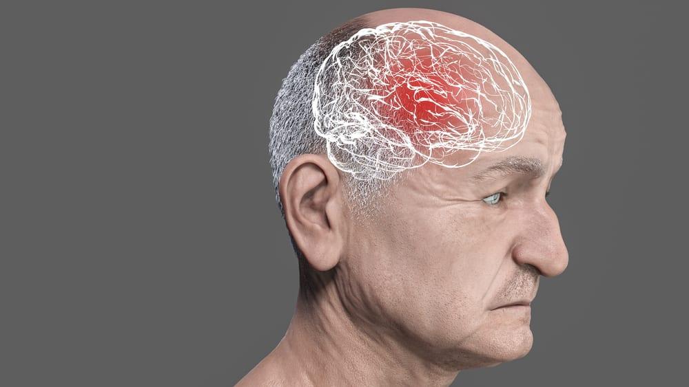 A demência frontotemporal é uma doença que abrange de 5% a 10% dos casos de síndromes demenciais. Saiba como reconhecer os sintomas.
