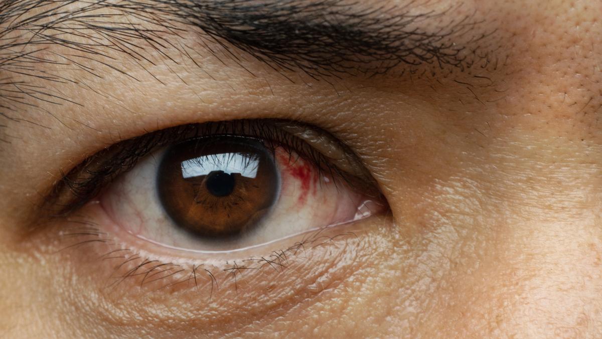 A conjuntiva é uma membrana que reveste a parte posterior da pálpebra, cuja função é proteger o globo ocular.