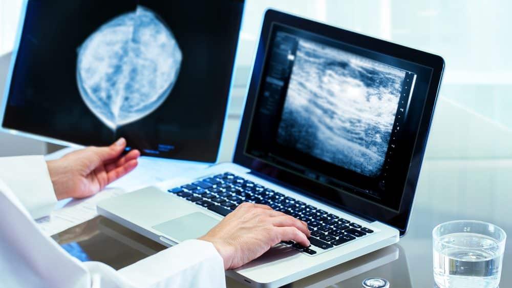 médico examina mamografia, um dos principais exames de diagnóstico do câncer de mama