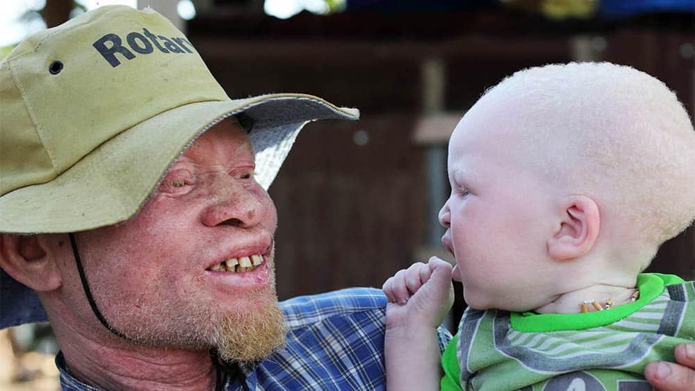 Pai e filho albinos.