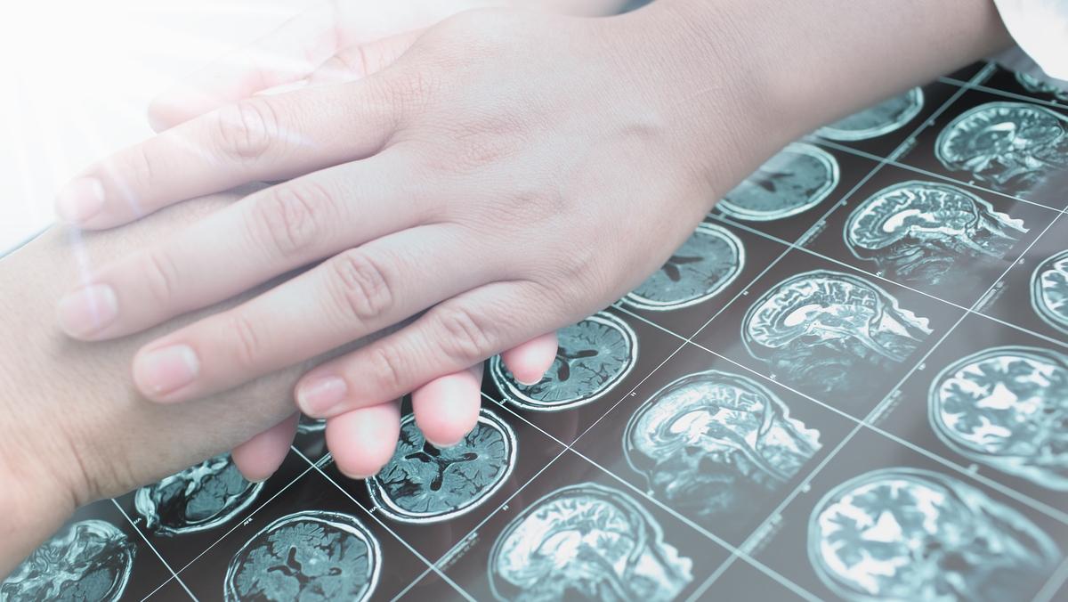 Diante de um episódio de convulsão, saiba como ajudar alguém com crise epiléptica.