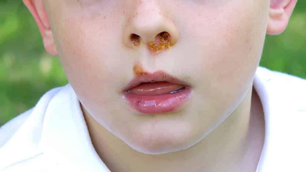 Close na região do lábio superior de uma criança com feridas causadas pelo impetigo.
