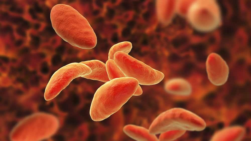 Toxoplasmose é uma doença infecciosa não contagiosa adquirida na maioria dos casos por via oral - ou seja,ela ingestão de carnes cruas ou mal passadas de hospedeiros intermediários que contêm cistos do protozoário.