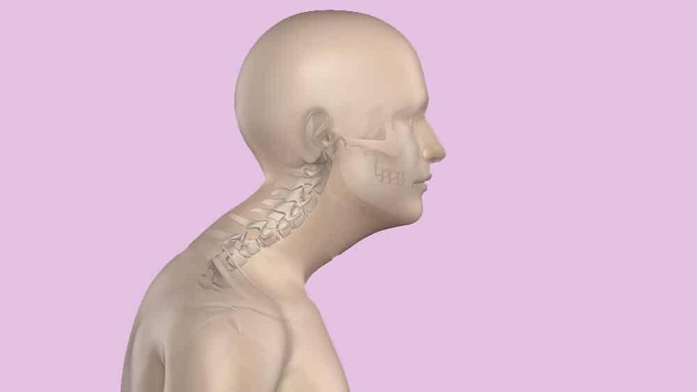 Ilustração de perfil de um homem com cifose.