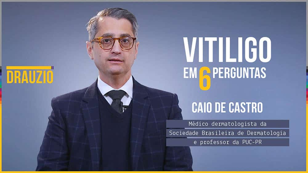 thumb x perguntas vitiligo