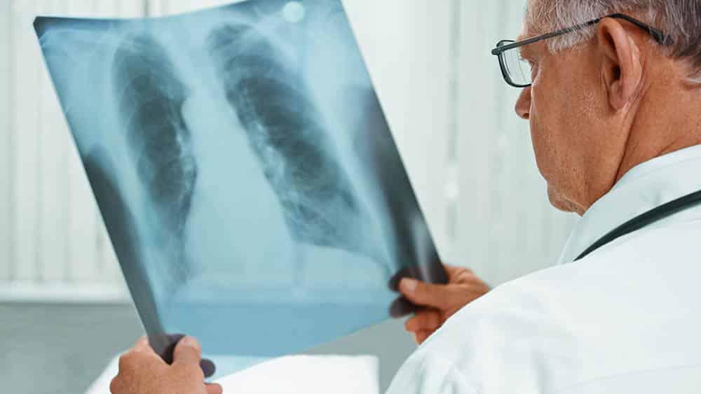 Médico segurando e analisando radiografia de tórax.