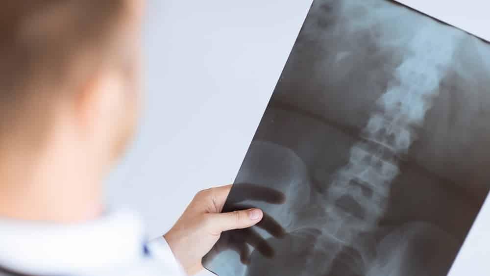 Médico olhando para uma radiografia (raios X)
