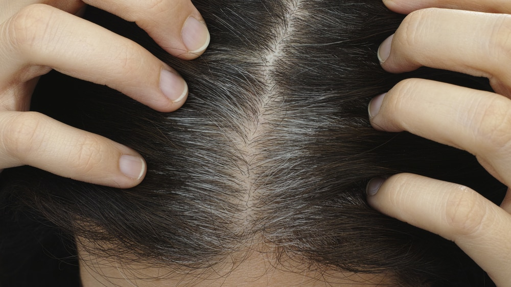 Os fios brancos não são necessariamente um sinal de envelhecimento, mas é preciso investigar suas origens.