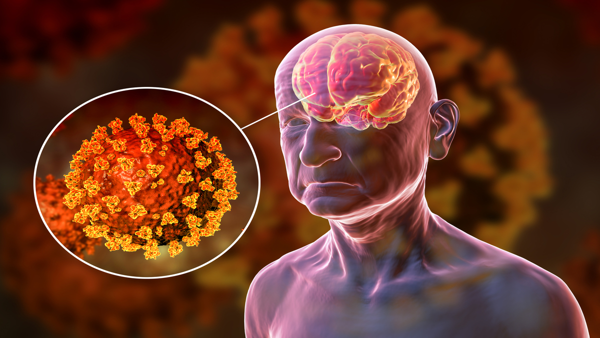 desenho em 3D de boneco com cérebro e vírus da covid em destaque. Perda de memória é comum na doença
